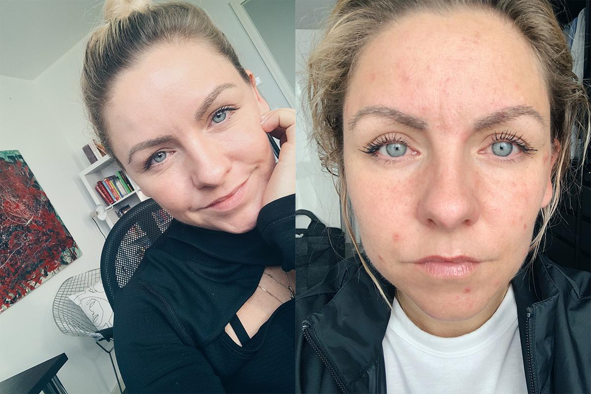 Vorher-Nachher Hautbild Akne Menstruation